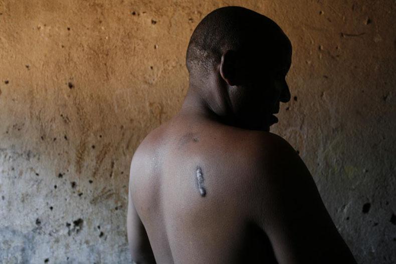 Gatumba survivors, Burundi, March 2007. Shakondo Gaturuturu, survivant du massacre de Gatumba © Photo by Christophe Calais.