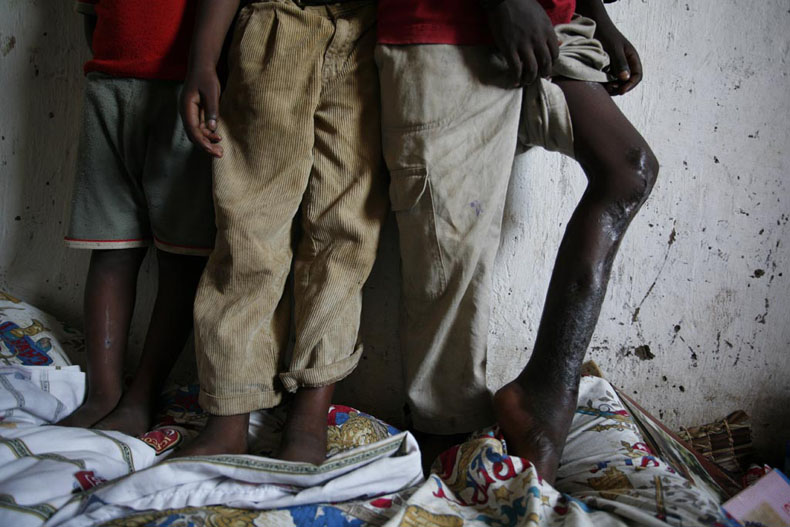 Gatumba survivors, Burundi, March 2007 © Photo by Christophe Calais.