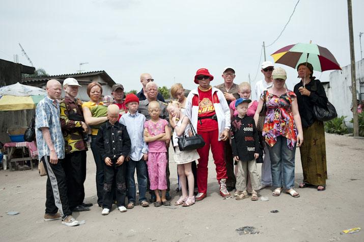 20/02/2010 - KINSHASA, RDC - Le catcheur congolais albinos Mwimba Texas a rassemblé quelques uns des membres de son association de défense des albinos avant son prochain combat qui doit se dérouler le soir même. Il en profitera pour leur distribuer des ombrelles et poursuivre son action de sensibilisation aux problèmes de santé et d'intégration qu'ils rencontrent fréquemment dans cette région du monde. PHOTO © Vincent Boisot/Riva Press