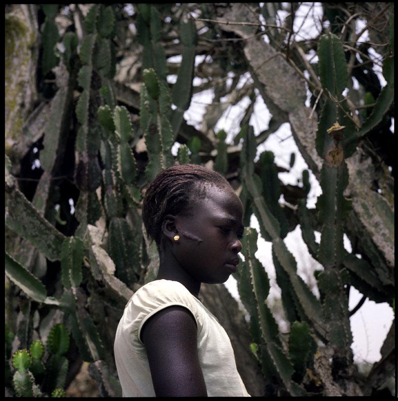 Avril 2011 Une petite fille Berom montre une cicatrice sur son visage. En mars 2010, le village de Dogo Nahawa fut attaqué en pleine nuit par des Fulani. 400 villageois furent tués. Les raisons de l'attaque restent obscures. Jos et l'etat du Plateau plus generalement, sont le theatre de massacres, attaques réguliers entre différents groupes ethniques et religieux. © Benedicte Kurzen