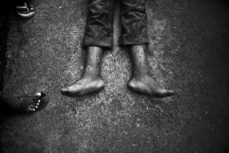 Le Mort X - Dans la nuit du 14 mai 2010, un membre du MSD (parti d'opposition burundais) est assassiné devant chez lui. Quelques rues plus loin, on retrouvera deux autres corps sans vie qui ne seront pas identifiés et dont personne ne parlera vraiment. © Teddy Mazina